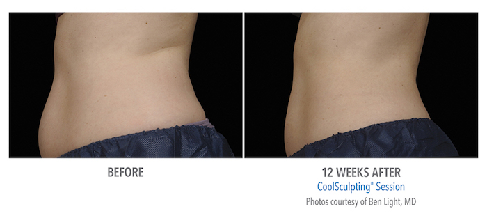 B&A-Light-AB-p01-2Set-12wk-LSide_LoRes